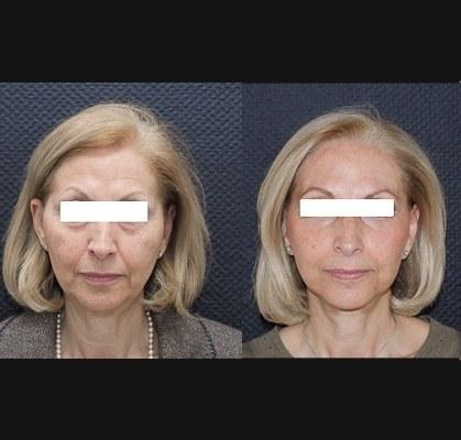 Lifting cervico-facial double plan. Vue de face.