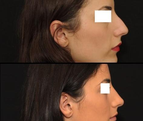 Rhinoplastie 7 ultrasonique vue de profil