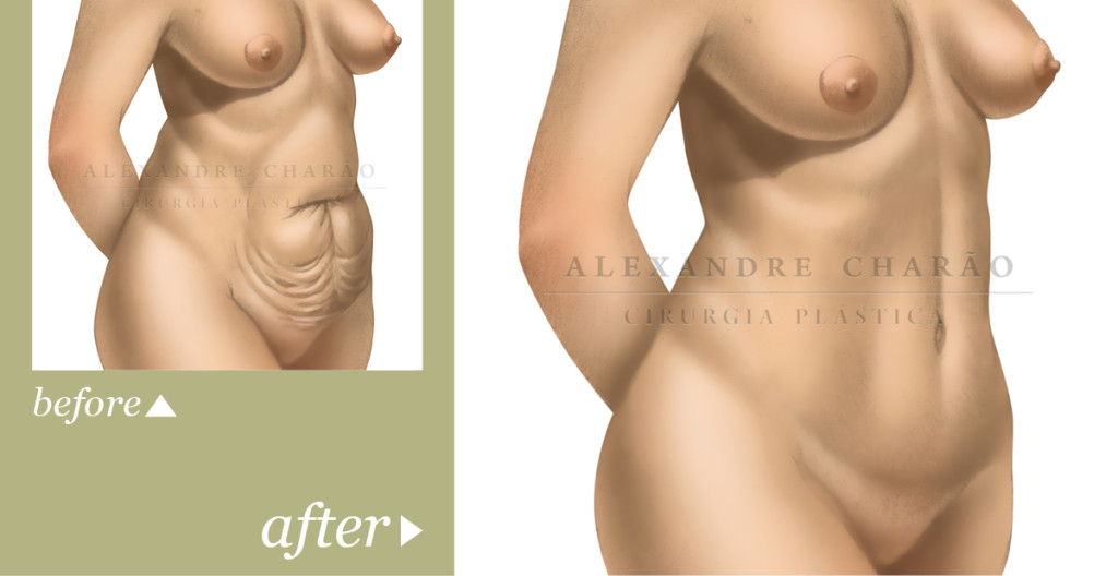 THE COMPLETE GUIDE TO ABDOMINOPLASTY1