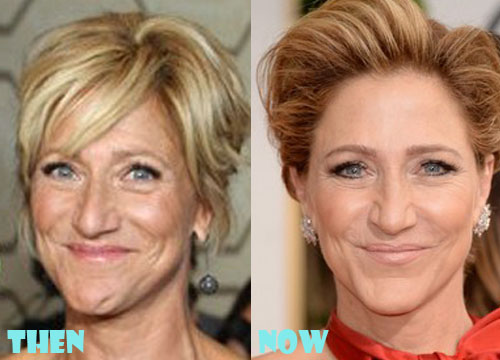 Edie Falco Plastic Surgery Before After
