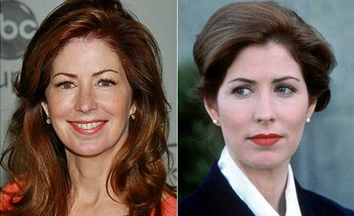 Dana Delany Plastic Surgery Before After
