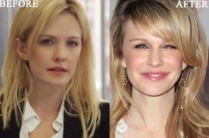 Kathryn Morris Plastic Surgery Before and After