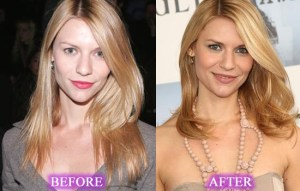 Claire Danes Plastic Surgery Before After