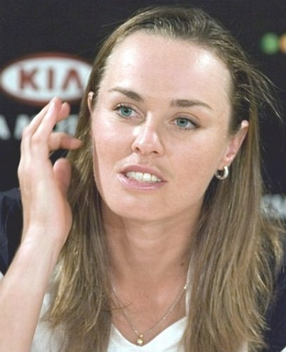 Martina Hingis Plastic Surgery Before After