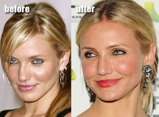 Cameron Diaz Plastic Surgery Before After