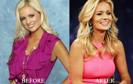 Emily Maynard Veneers Plastic Surgery Before After