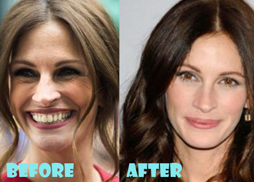 Julia Roberts Plastic Surgery Before After
