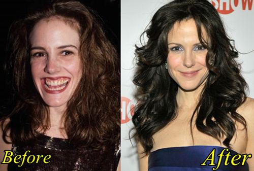 Mary Louise Plastic Surgery Before After