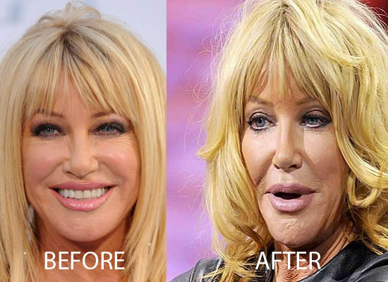 Suzanne Somers Plastic Surgery Before After