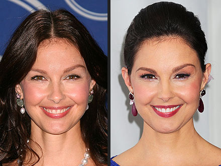 Ashley Judd Plastic Surgery Before After