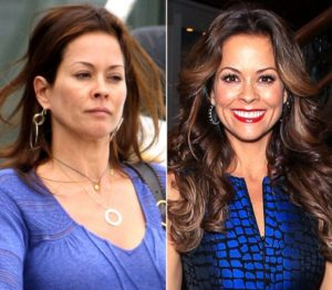 Brooke Burke Plastic Surgery Before After