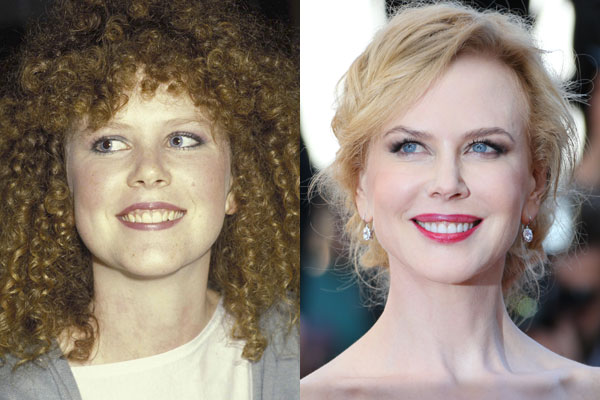 Nicole Kidman Plastic Surgery Before After