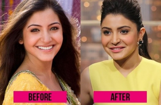 Anushka Sharma Plastic Surgery Before After