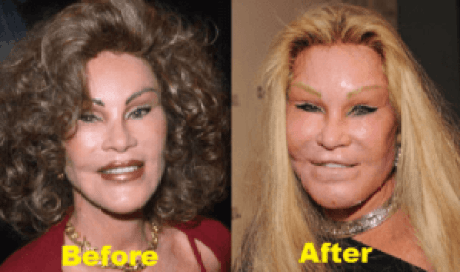 Jocelyn Wildenstein Plastic Surgery Before After