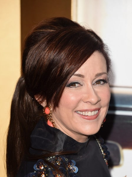 Patricia Heaton Plastic Surgery Before After