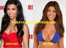 Kourtney Kardashian Breast Implants Surgery