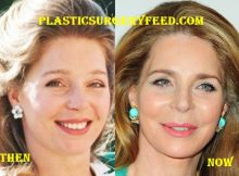 Queen Noor Favcelift and Botox Surgery