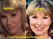 Susan Hampshire Before and After