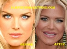Victoria Silvstedt Lips Surgery