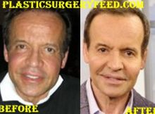 Louis Licari Lips Surgery