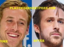 Ryan Gosling Nose Job Rhinoplastsy