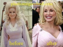 Dolly Parton Breast Implant