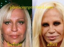 Donatella Versace Nose Job Rhinoplasty