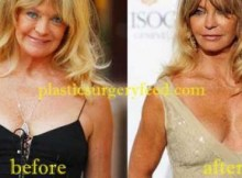 Goldie Hawn Breast Implant