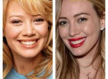 Hilary Duff Lip Surgery