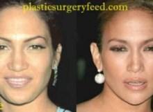 Jennifer Lopez Nose Job