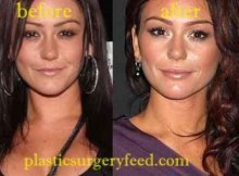 Jwoww Botox