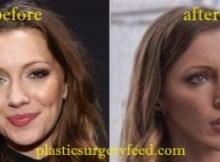 Katie Cassidy Cheek Augmentation
