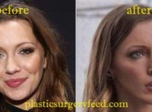 Katie Cassidy Cheek Augmentation