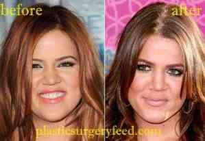 Khloe Kardashian Lip Filler and Facelift