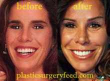 Melissa Rivers Nose Job