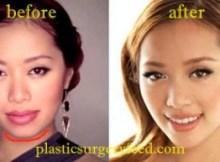 Michelle Phan Chin Enhancement