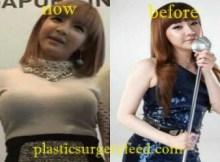 Park Bom Breast Implant