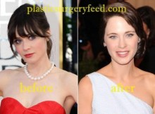Zooey Deschanel Botox