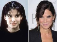 Sandra bullock botox and facial
