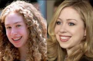Chelsea Clinton nose job and chin implant