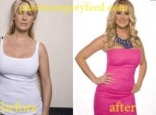 Kim Zolciak Liposuction