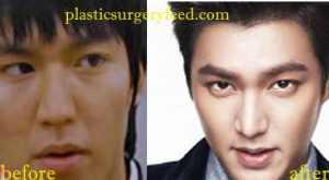 Lee Min Ho Lip Enhancement