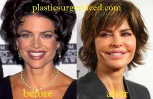 Lisa Rinna Lip Enhancement
