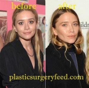 Mary-Kate Olsen Nose Job