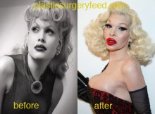 Amanda Lepore breast before and after surgery