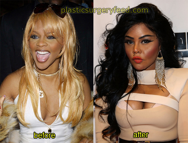 Lil Kim Before and After Breast Implants