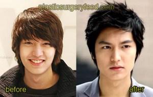 Lee Min Ho Plastic Surgery Feed 1