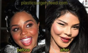 lil kim before and after plastic surgery 2
