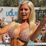 Heidi Montag Plastic Surgery Before And After