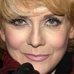 Ann Margret Plastic Surgery – Good Facelift